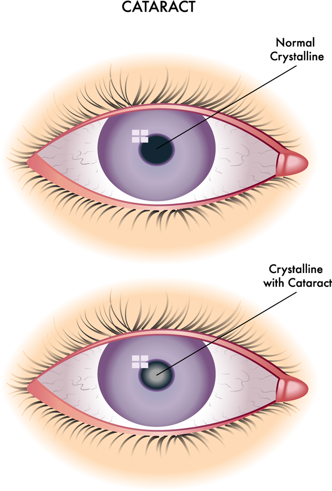 c756f5a8582e Cataracts are a clouding of the normally clear crystalline lens of the eye.  This prevents the lens from properly focusing light on the retina at the  back of ...