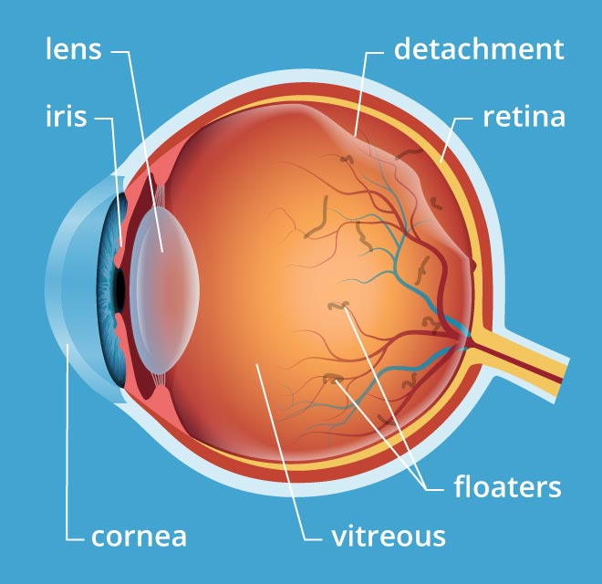 Flashes, Floaters, and Vitreous Detachment