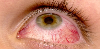 treatment eye Infection